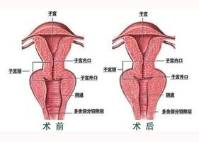 北京玛丽阴道紧缩案例