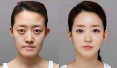 北京卡贝媞下颌角整形案例