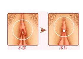 北京玛丽阴蒂肥大缩小案例
