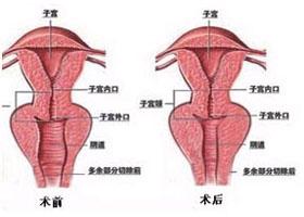北京玛丽阴道再造案例