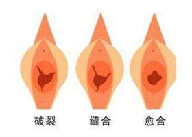 北京臻瑞美思童处女膜修复案例