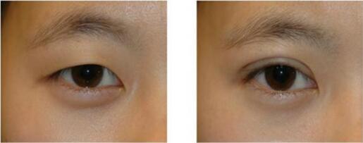 北京东宫双眼皮手术案例