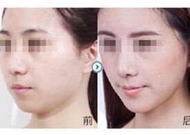 北京呈美瘦脸针案例