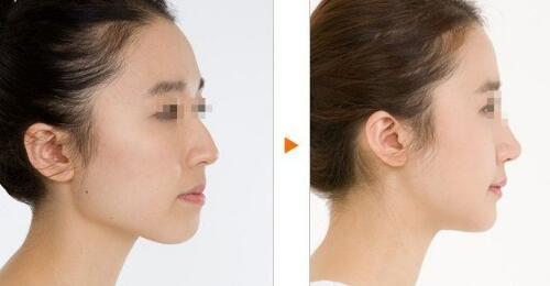 北京东宫注射瘦脸针案例