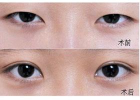 北京丹熙晶都双眼皮手术案例