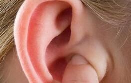 杯状耳畸形还可以治疗好吗?