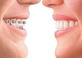 做牙齿矫正会影响身体健康吗?做牙齿矫正会影响身体健康吗?