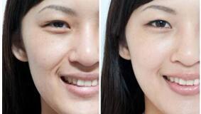 北京中医医院双眼皮手术案例