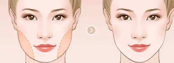 进行下颌角整形会影响咀嚼吗?