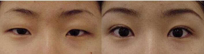 北京星都双眼皮手术案例