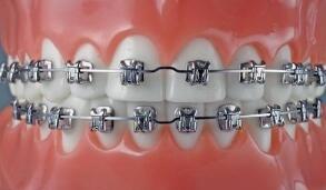 牙齿外突还能矫正吗?怎么矫正?