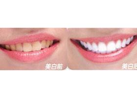 北京康贝佳口腔牙齿美白案例