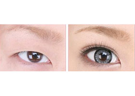 北京禾欣双眼皮手术案例