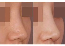 北京禾欣隆鼻手术案例