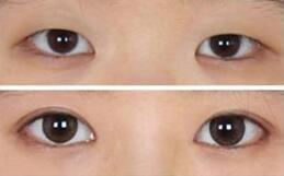 北京比华利双眼皮手术案例
