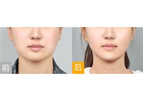 北京禾欣瘦脸针案例