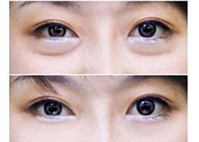 北京禾欣激光祛眼袋案例