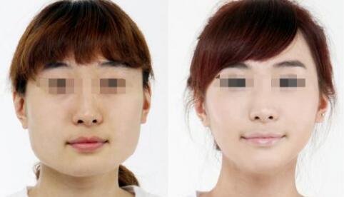 北京比华利注射瘦脸针案例
