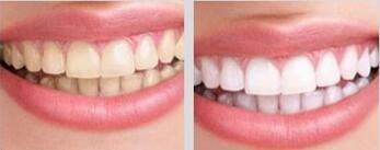 北京佳美牙齿美白案例