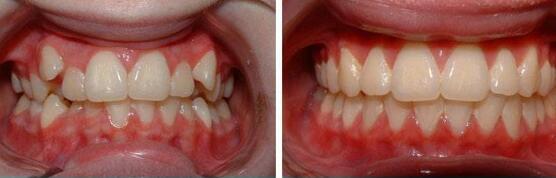 北京佳美牙齿矫正案例