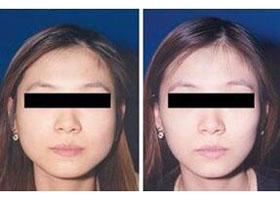 北京微丽瘦脸针案例