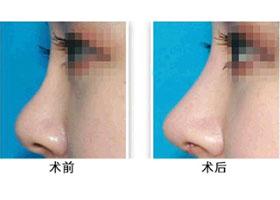 首都医科北京安贞隆鼻术案例
