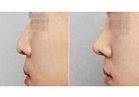 北京庆熙隆鼻手术案例