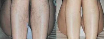 北京秀中医疗激光大小腿脱毛案例