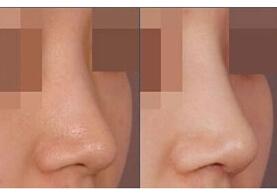 北京京一中医隆鼻手术案例
