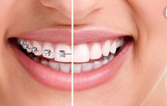 牙齿矫正需要看适合年龄做吗?