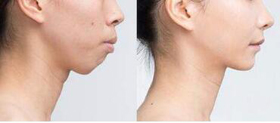 北京美年口腔牙槽骨内推案例