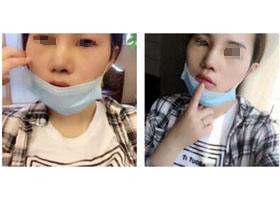 北京汇美隆鼻案例