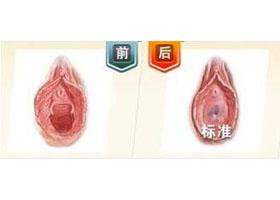 北京汇美处女膜修复案例