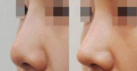 北京焕星隆鼻手术案例
