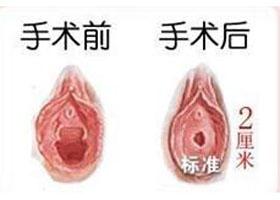 北京斯嘉丽处女膜修复案例