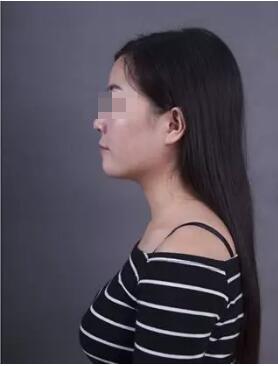 北京曙光假体隆鼻案例