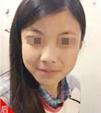 北京世熙智能核光祛斑案例