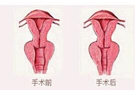 北京世熙阴道紧缩术案例