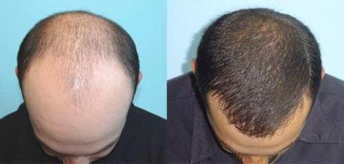 头发种植后是否可以戴假发呢?