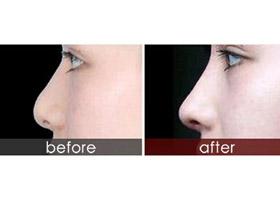 潮州华美隆鼻手术案例
