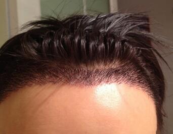 郑州毛发移植效果自然吗?