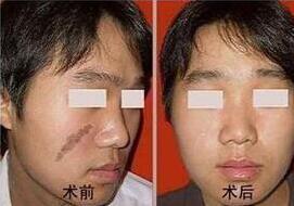 广东药大附属第一医院激光祛疤案例