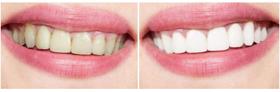 北京大学口腔牙齿美白案例