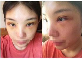 中山百佳韩式双眼皮案例