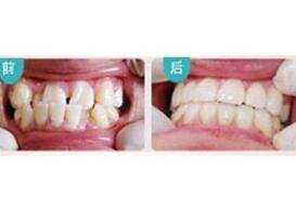 北京丽贝佳牙齿美白案例