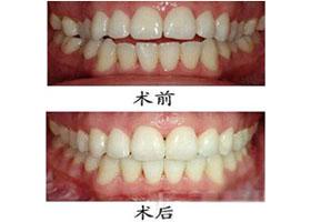 中国中医院西苑牙齿矫正案例
