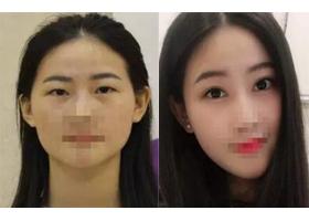 汕头苏国艺双眼皮手术案例