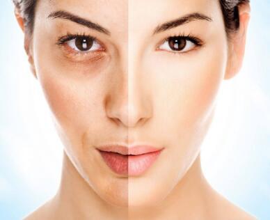 皮肤黑的人注射美白针之后要加强做防晒工作吗?