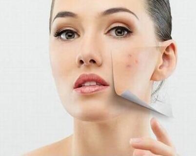 求美者做激光祛痘治疗时要戴上护眼罩吗?
