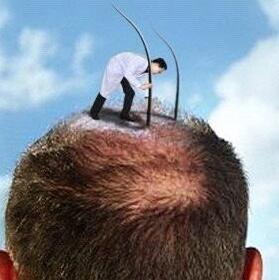 头发患者想知道做头发种植一次就行了吗?